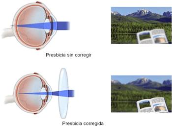 presbicia-02